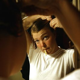 Why Does Substantial Weight Loss Sometimes Cause Hair Loss, Too?